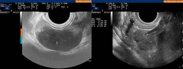 ecografia transrettale per la prostata